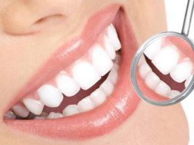 40岁女子只剩15颗牙齿!一年掉一颗!你还不好好护牙吗?